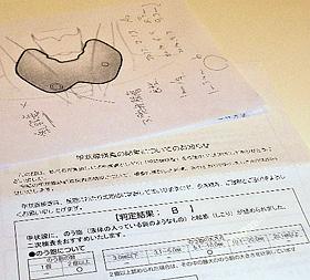 【 甲状腺検査(1) 】 不安に耳を傾け支援